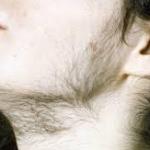 занятия 12 гирсутизм гипертрихоз